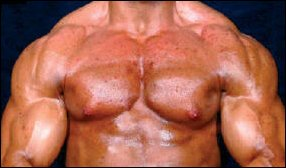 Extreme acne scars chemical bodybuilder (21) for life